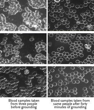 Blood Viscosity Samples